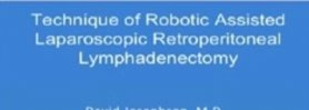 Technique of Robotic Assisted Laparoscopic Retroperitoneal Lymphadenectomy