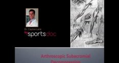 Arthroscopic Subacromial Decompression: Spur Removal