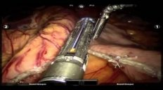 Robotic Sleeve Gastrectomy and Hiatal Hernia Repair using the Vessel Sealer Device