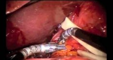 Robotic Paraesophageal Hernia Repair