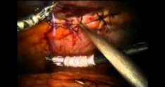 Robotic Ventral Hernia Repair