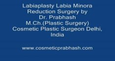 Labiaplasty India Labia Minora Reduction Surgery Delhi
