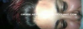 Eyebrow Hair Transplant  in India by Dr. Kishore Pentyala