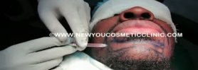 Beard Hair Transplant in India performed on african patient