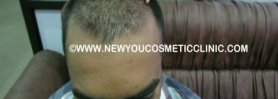 Hair Transplant Results Before and After Video Dr. Pentyala
