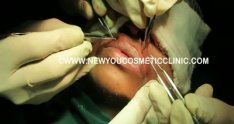 Mustache Hair Transplant Surgery in India, Bangalore