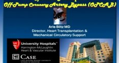 Beating Heart Bypass Surgery