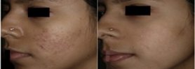 Best Acne Scar Removal Treatment in Delhi