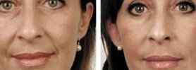 Orthognathic Surgery| Chin Augmentation| Jaw Surgery| Weak Chin