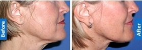 Botox Injection Treatment for Masseter Hypertrophy - The Esthetic Clinics