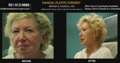 Before and After Face Plastic Surgery Video by Dr. Arthur G Handal, MD Plastic Surgeon. Handal Plastic Surgery provides cutting edge plastic surgery procedures including facial surgery, facelift, botox, rhinoplasty and other body contouring procedures. Ph: 561-912-9888 https://www.handalplasticsurgery.com - surgery videos