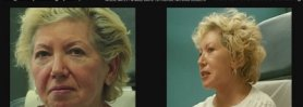 Before Face Plastic and Cosmetic Surgery Video in Boca Raton - Part 1
