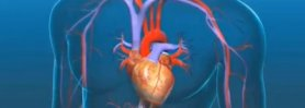 Aortic Valve Replacement Procedure - An Open Heart Surgery!