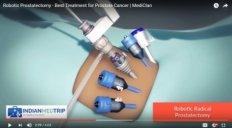Robotic Prostatectomy - Best Treatment for Prostate Cancer | MediClan