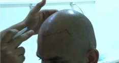 FUE Hair Transplant Surgery in Dubai by Dr. Sanjay Parashar at Cocoona Centre