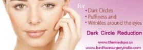 DARK CIRCLES UNDER EYE & PIGMENTATION TREATMENT In Delhi, INDIA BY DR. AJAYA KASHYAP