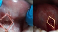 Diamond Like Wound and Healing Properties After The Tongue Tie and Lip Tie Release Surgery