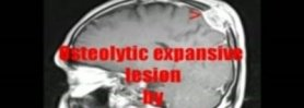 Cranial osteolytic expansive lesion