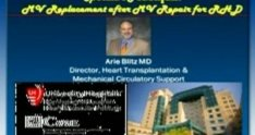 Complex Reoperative Mitral Valve Surgery