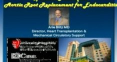 Aortic Root Replacement for Endocarditis