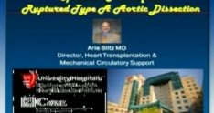 Surgical Repair of a Ruptured Type A Aortic Dissection
