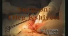 Resection of Colon Transversum for Colon Cancer