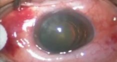 Vitrectomy for Macular Pucker Wide Angle View