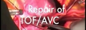 TOFAVC: Repair of Tetralogy of Fallot with Atrioventricular Canal