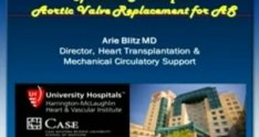 Aortic Valve Replacement for Aortic Stenosis