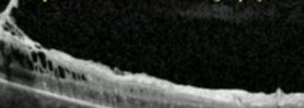 Pars Plana Vitrectomy with Epiretinal Peel for 20/400 Macular Pucker - High Definition