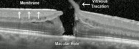 Vitrectomy with Internal Limiting Membrane Peel for Idiopathic Macular Hole