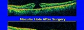 Macular Hole Surgery with Internal Limiting Membrane Peel