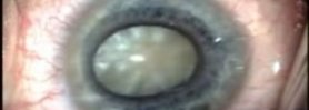 Hypermature Cataract with Small Pupil Vision Blue Morcher