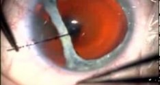 Advanced Traumatic Cataract Extraction Repair of the Iris Dialysis