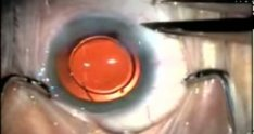 Intra-vitreal Avastin after Cataract Extraction