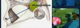 St John's Pituitary Disorders Program & Endonasal Endoscopic Surgery
