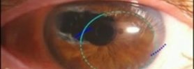 IOL (Cataract Lens) Exchange with Iris Repair of Previous Surgery