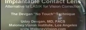 Los Angeles ICL Visian Implantable Contact Lens Uday Devgan