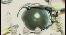 Posterior Polar Cataract Surgery