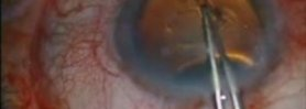 Traumatic Cataract Using CTR and Pupilloplasty