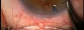 Trabeculectomy Anterior Vitrectomy Left Eye