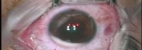 Intralase LASIK in a Case with Nystagmus