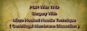 PDR with TRD Surgery with Micro Hooked Needle Technique