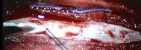 Idiopathic Spinal Cord Herniation