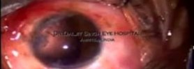 Scleral Suspended Aniridia Lens Implant