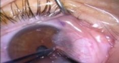 Pterygium Removal, Conj. Autograft with Fibrin Glue and Mitomycin C