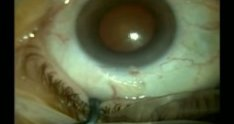 Cataract Surgery with Small Pupil