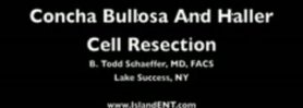 Concha Bullosa & Haller Cell Resection in HD