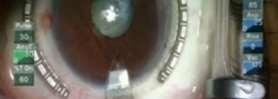 Traumatic Cataract Extraction: Keep the Bag? or Not?