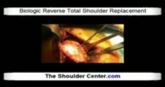 Biologic Reverse Total Shoulder Replacement